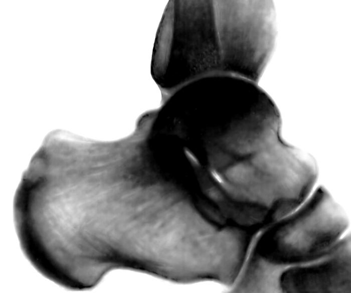 Голеностопный сустав. Рис. 10