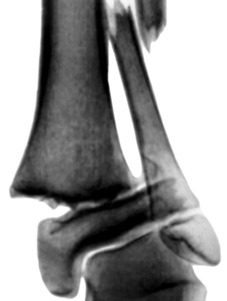 Голеностопный сустав. Рис. 13