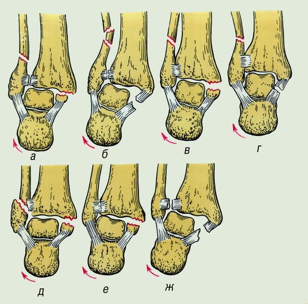 Голеностопный сустав. Рис. 19