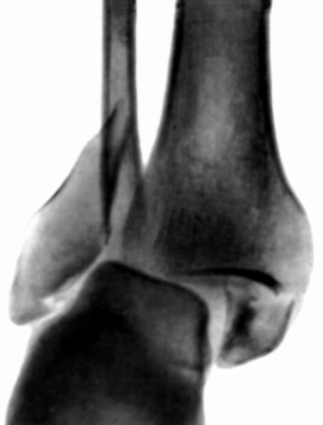 Голеностопный сустав. Рис. 5
