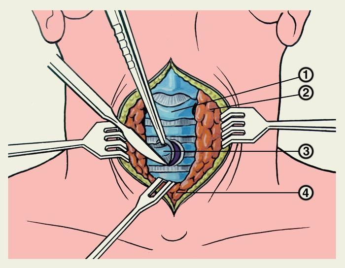 yaponskoe-video-porno-u-ginekologa