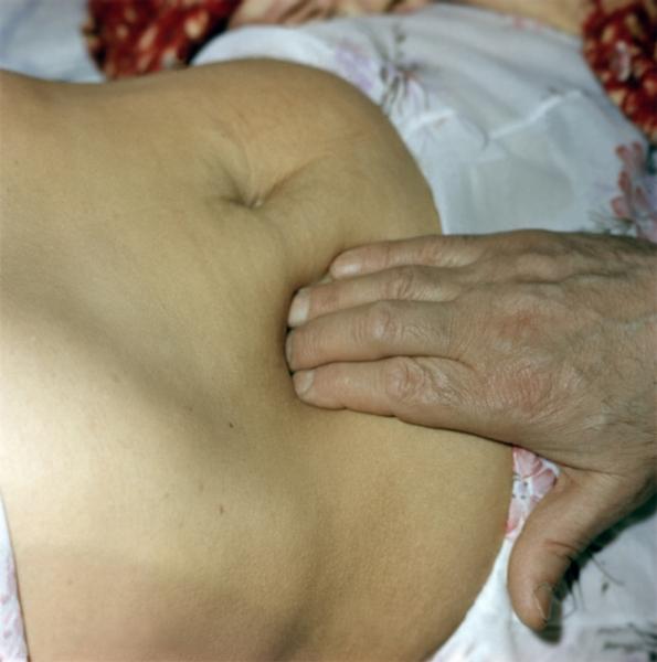 Диетический стол при заболеваниях селезенки